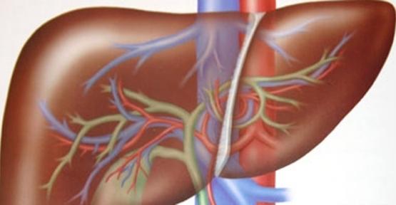 Hepatomegali - nedir ve nasıl ortaya çıkıyor